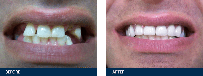 El cajon dentist before after gallery